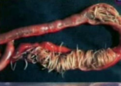 фотографии паразитов человека